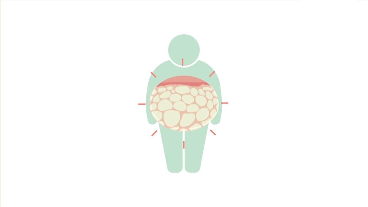과체중과 대사증후군